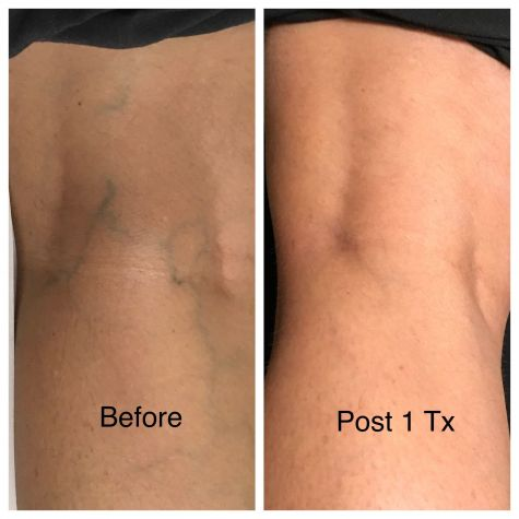 Vein Therapy 1