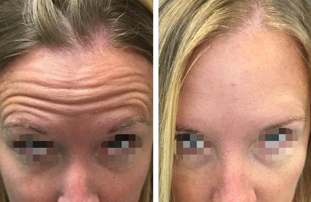 Revive At The Group › Dysport > Improve Frown Lines