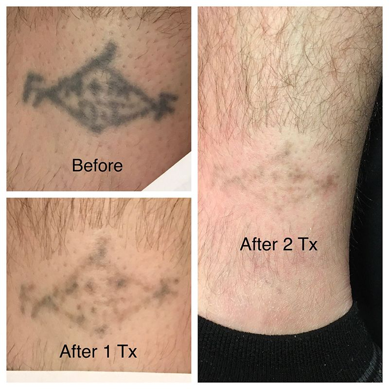 Revive › Tattoo Removal > Laser Tatoo De-Inking